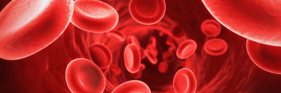 Iron Deficiency Anemia: The Feels of it all